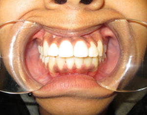 After Braces - Precision Dental Care