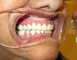 After Bridge - Before Bridge - Precision Dental Care