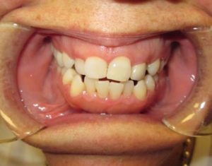 After Crown - Precision Dental Care