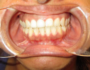 After Decay - Precision Dental Care