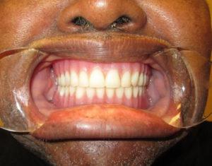 After Dentures - Precision Dental Care