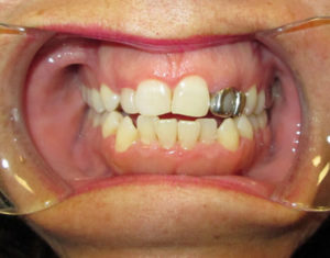 Before Crown - Precision Dental Care