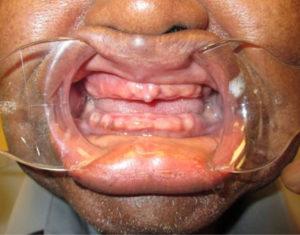 Before Dentures - Precision Dental Care