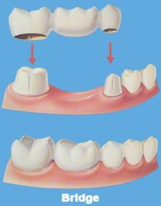 Crowns - Bridge - Precision Dental Care