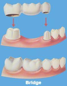Crowns - Bridge - Precision Dental Care