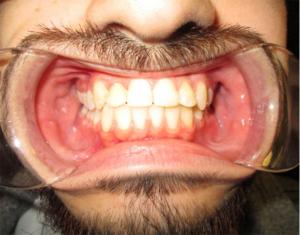 After Braces - Precision Dental Care