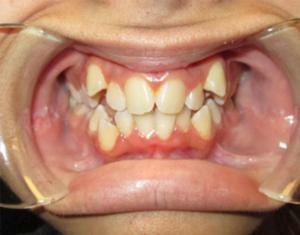 Before Braces - Precision Dental Care