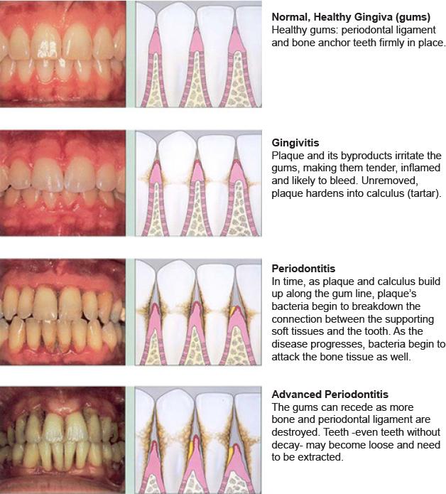 Preventive Dentistry Precision Dental Care