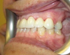 After Bridge- Precision Dental Care