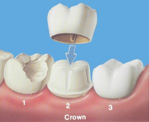 Crowns - Precision Dental Care