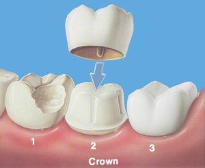 Crowns - Precision Dental Care