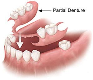 Dentures - Precision Dental Care