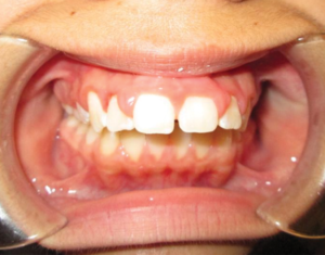Before Braces - Precision Dental Care